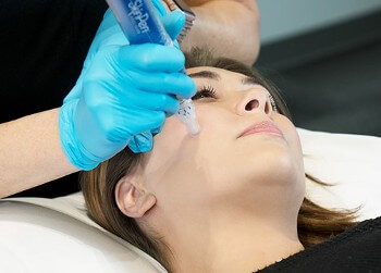 Microneedling offered at Caddell's Laser Clinic